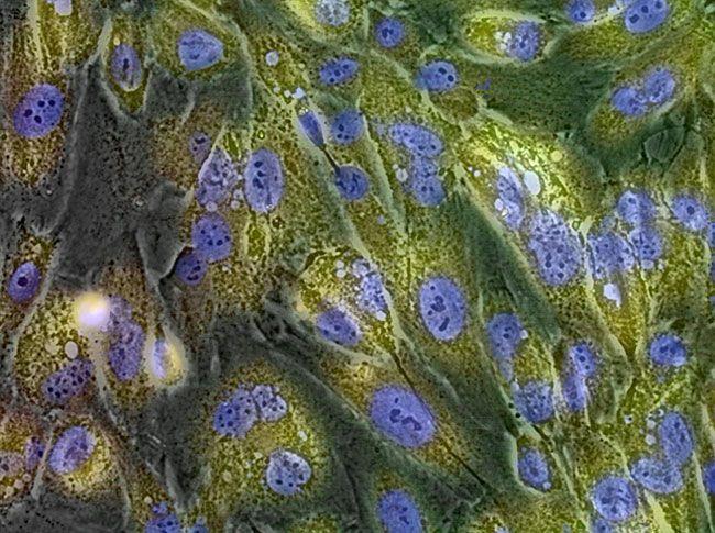 GlycoYELLOW™によるSA-β-gal活性の生体染色v
