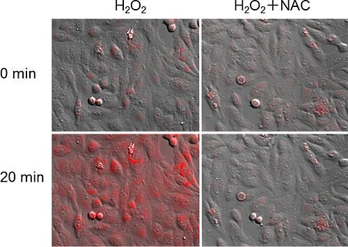 OxiORANGE™によるHeLa細胞のhROS検出